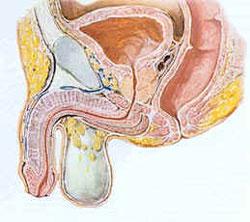 calcificazione al pene che fare?   Andrologo Roma, Urologo Roma