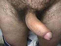 Andro clinica Roma diagnosi pene curvo in erezione